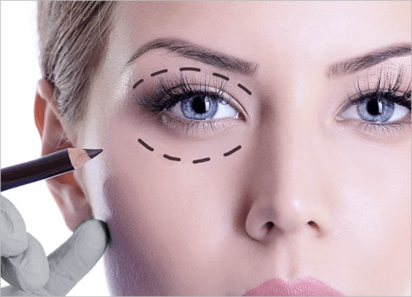 PlexR Soft Surgery 30% Korting